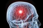 moždani_udar