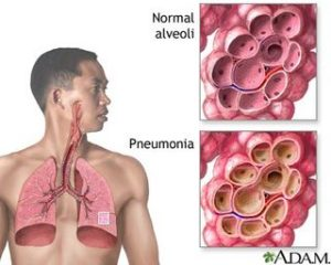 pneumoniavi0