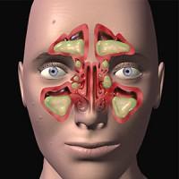 U bukvalu ovako su bili ispunjeni gnojem moji sinusni kanali :(