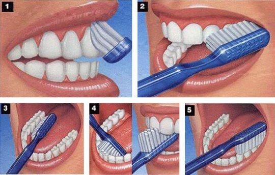 pravilna-tehnika-pranja-zuba