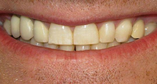 zuckasti-zubi